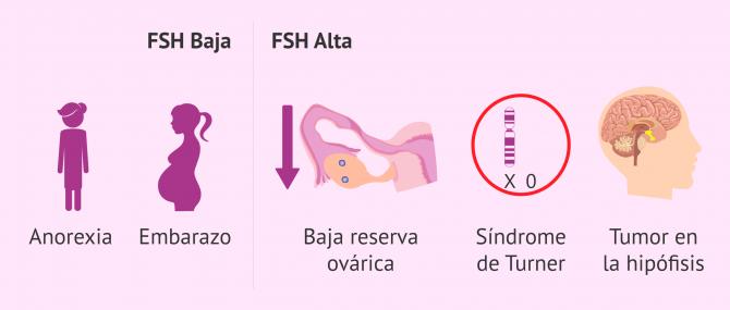 Imagen: Alteraciones de los valores de FSH en la mujer