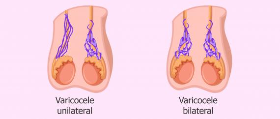tipos de varicocele