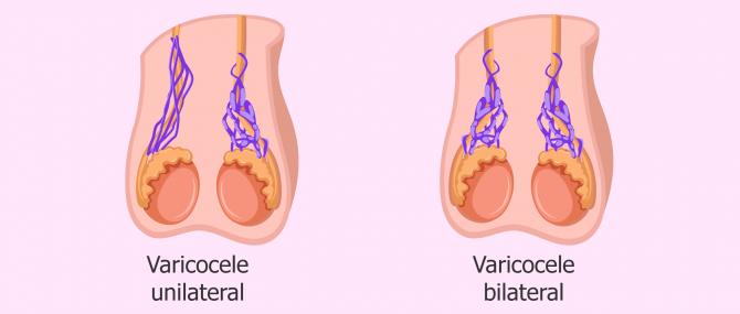 Imagen: tipos de varicocele