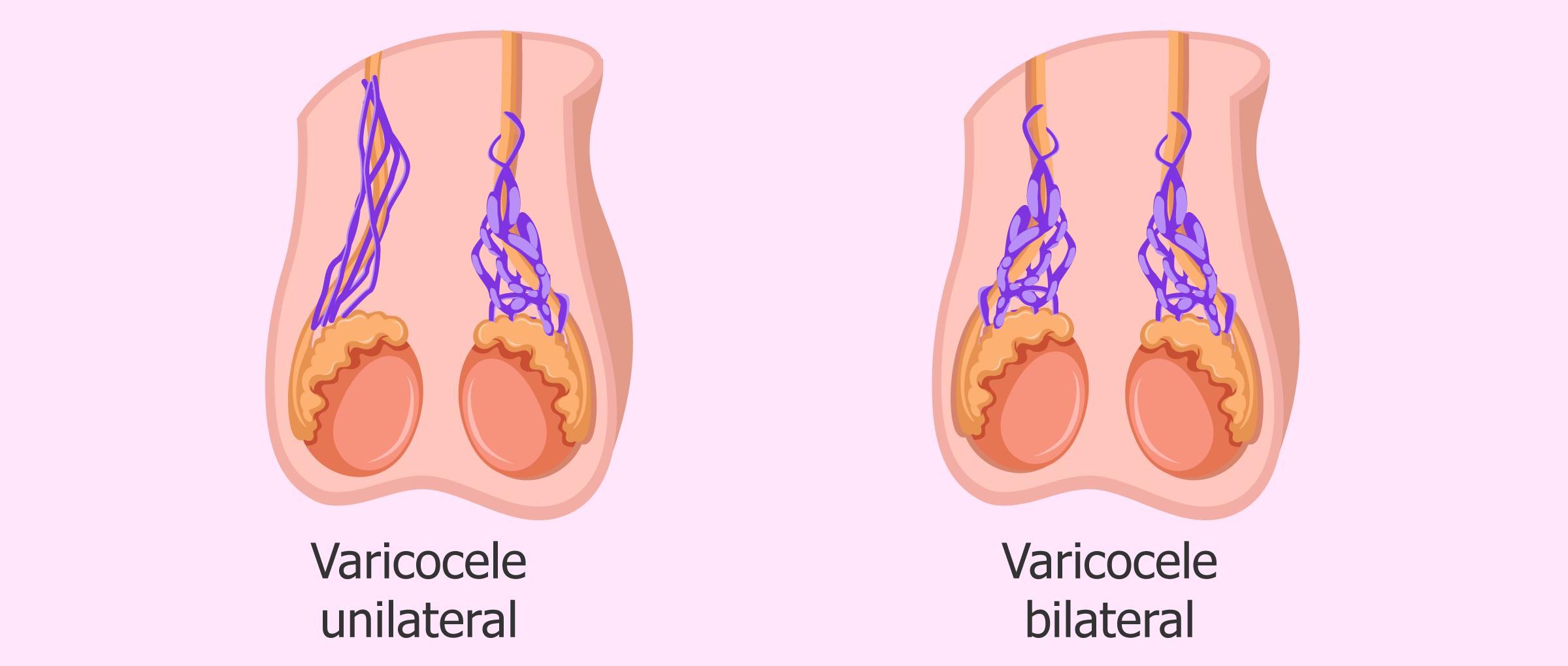 Varicocele bilateral o unilateral