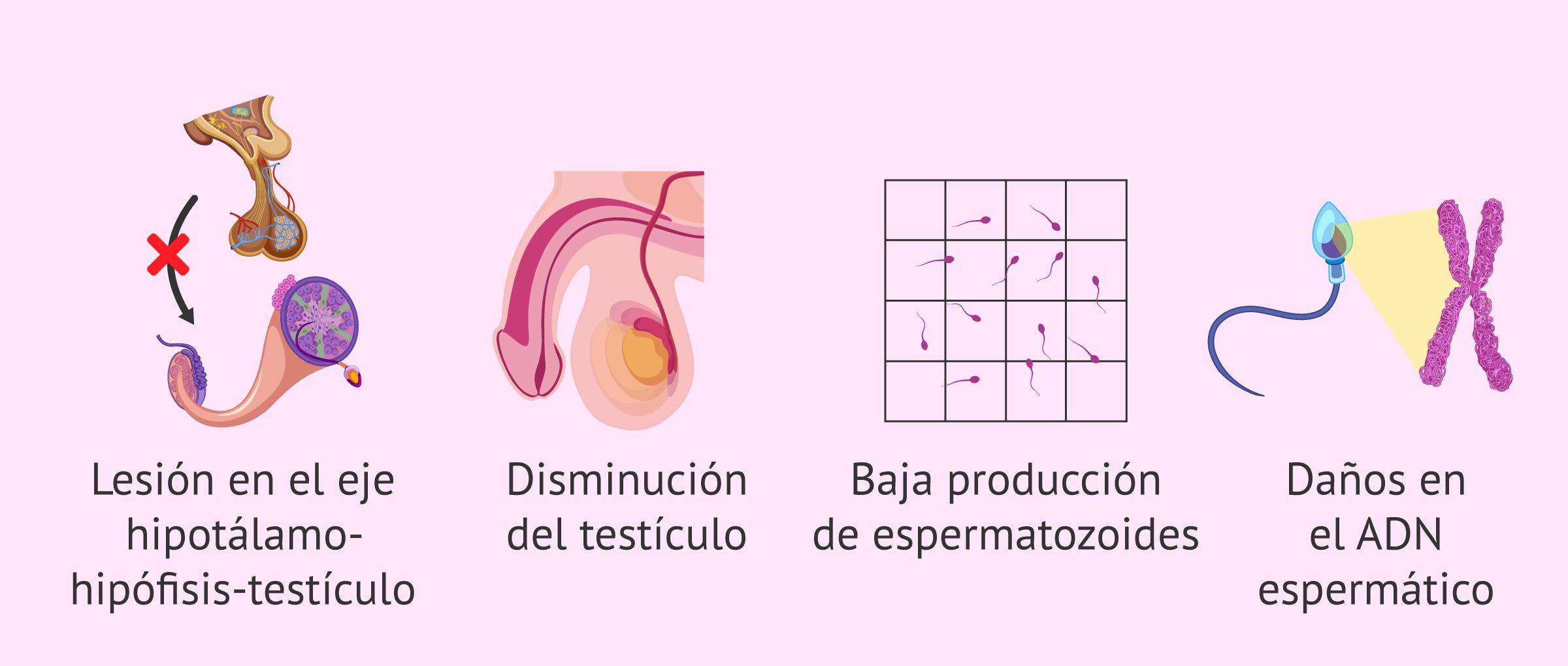 Consecuencias del varicocele en la fertilidad