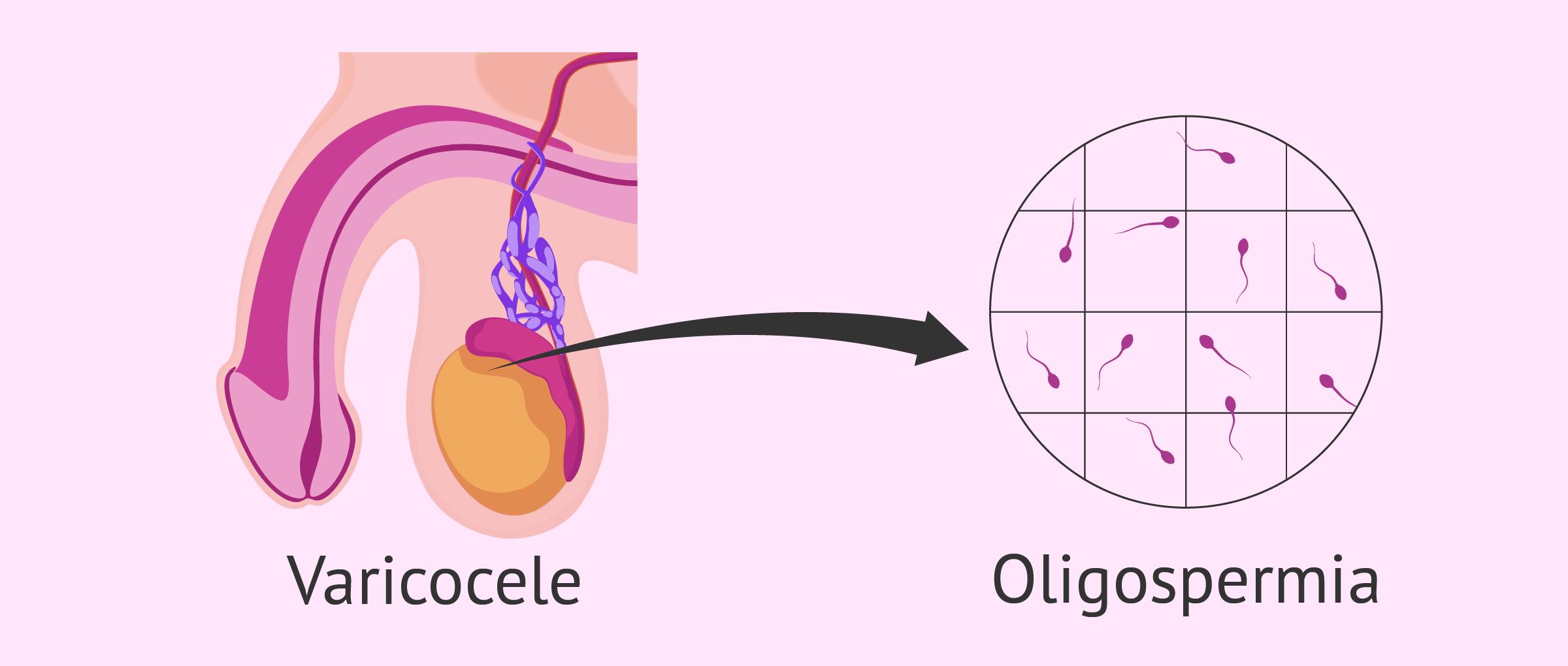 Oligospermia por varicocele testicular