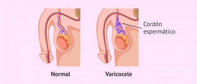 Imagen: Varicocele y azoospermia