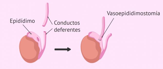 Imagen: Proceso de la vasoepididimostomía