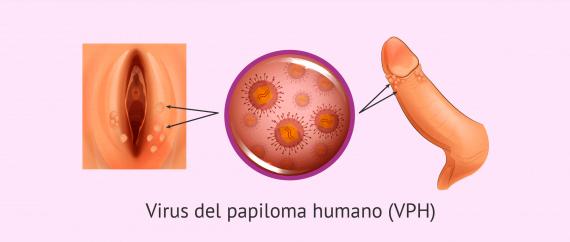 Imagen: Verrugas por el virus del papiloma humano