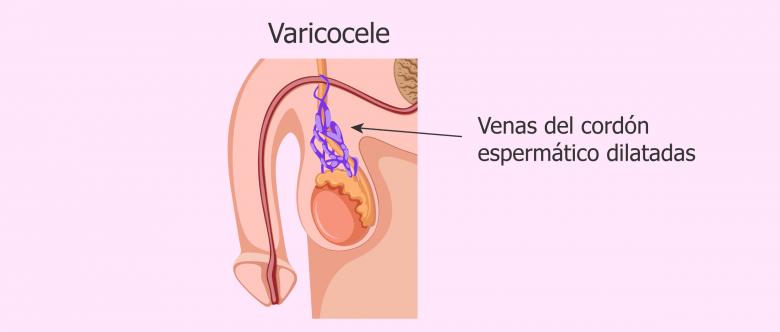 que es varicocele en un testiculo