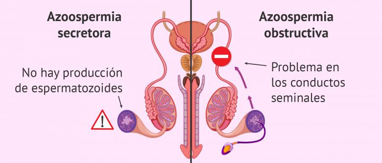 después de una biopsia de próstata espermáticas