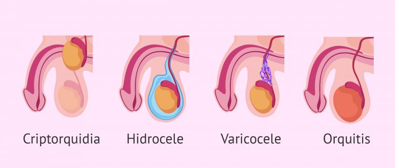 La esterilidad masculina por un factor testicular congénito o ...