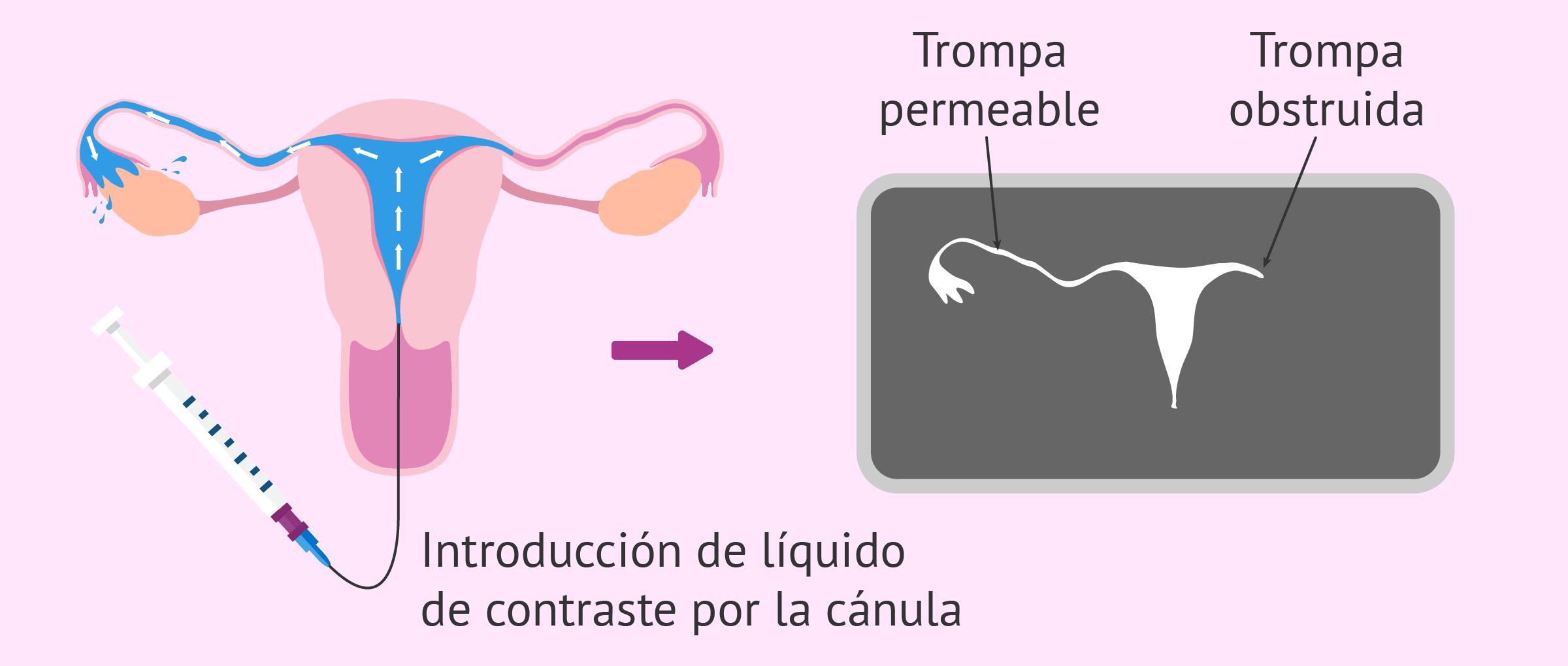 Histerosalpingografía