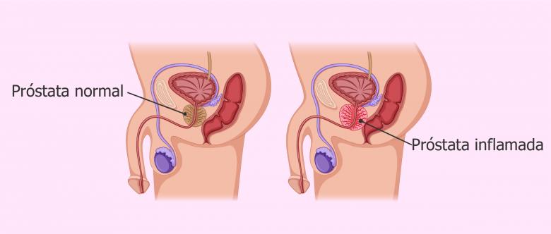 prostata sintomas y causas