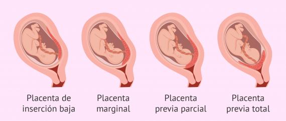 ¿Qué es la placenta previa? - Tipos, causas, diagnóstico y