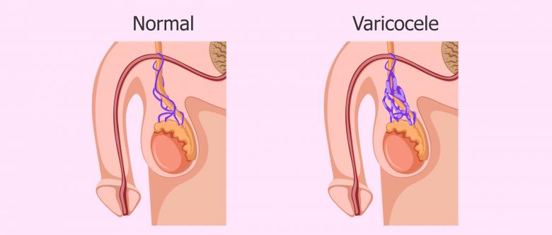 Comparación de genitales con varicocele